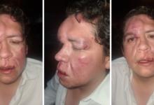 Golpean brutalmente a representante de MORENA en Tamaulipas
